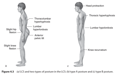 Lower Cross syndrome - Poor Posture - Moore Chiropractic, PLLC
