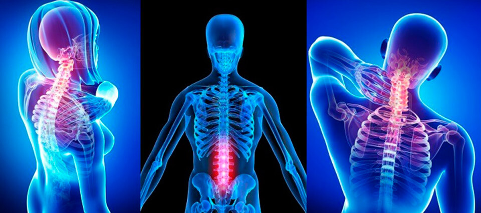 Seeking chiropractic care after a care accident should be done for all involved